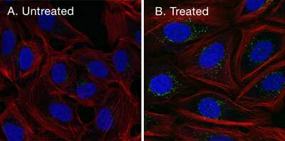 Stained cell images, with and without optimized permeabilization