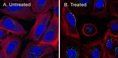 Stained cell images, with and without protein blocking