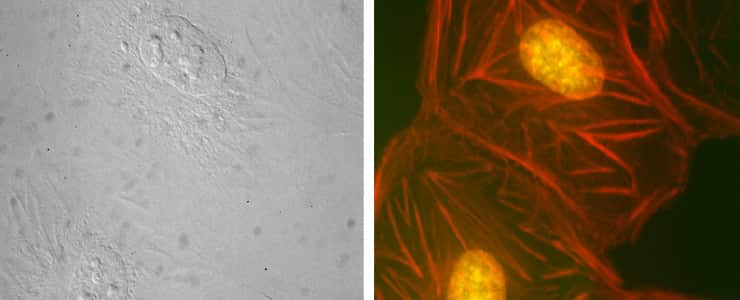 an image of the same field of stained BPAE cells captured using brightfield (left) and fluorescence (right) microscopy