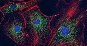 HeLa cells fixed and permeabilized using the Image-iT® Fixation/Permeabilization Kit