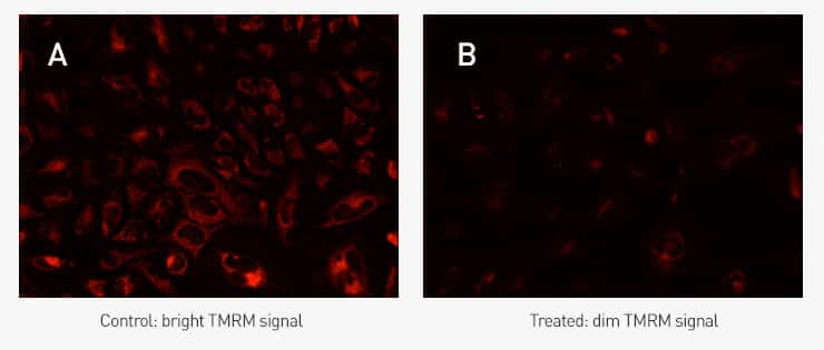 Two-panel photograph of stained cells showing red-fluorescent TMRM staining in healthy HeLa cells (on the left) and the loss of TMRM signal that occurs when mitochondrial membrane potential is disrupted (on the right).