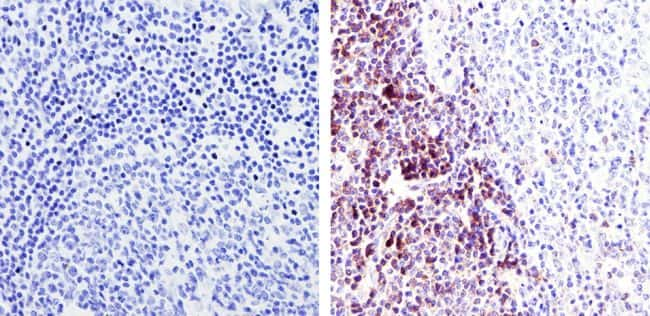 Immunohistochemistry analysis of TCR Alpha F1