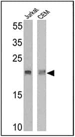Western blot analysis of TCR V delta 2 was performed by loading 25 µg of Jurkat