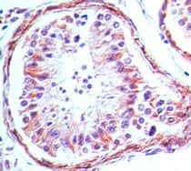 Immunohistochemical analysis