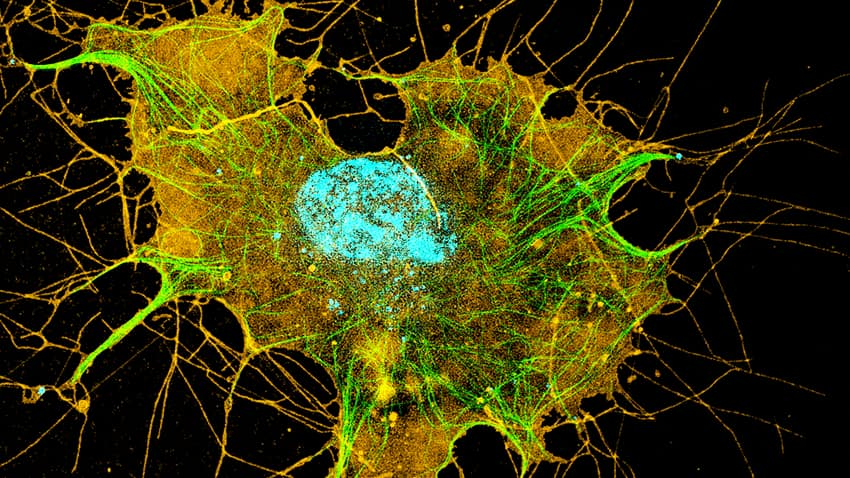Three-plex image of COS7 live cell.