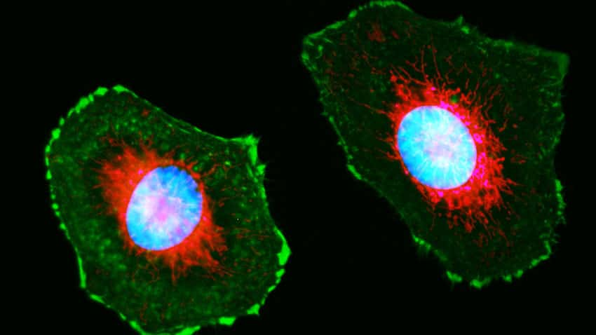 HeLa cells were transduced with Invitrogen CellLight Mitochondria-RFP red dye and CellLight Talin-GFP green dye for 24 hours, then labeled with Invitrogen NucBlue Live ReadyProbes Reagent-Hoechst 33342 for 15 minutes.