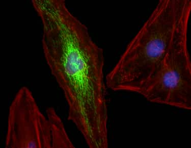 Three-color imaging of HeLa cells with the EVOS FL Auto Imaging System.