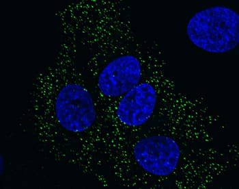 Peroxisome staining in HeLa cells