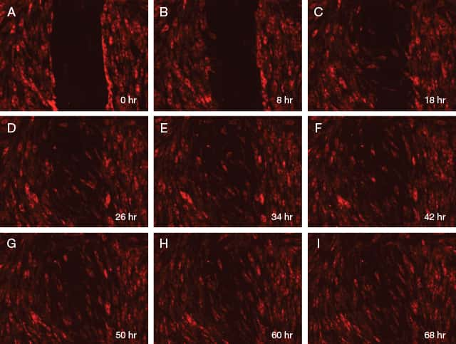 Nine panel time-lapse imaging of wound healing in human dermal fibroblast cells with the EVOS® Onstage Incubator and Texas Red® optical filters