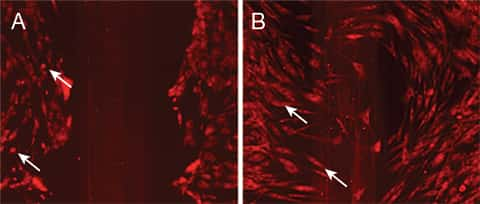 Two panel figure of photos comparing phototoxicity of extreme vs. minimal light exposure of human dermal fibroblasts during wound healing; imaged on the EVOS FL Auto Imaging System