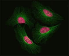 tubulin and nuclear staining in HeLa cells