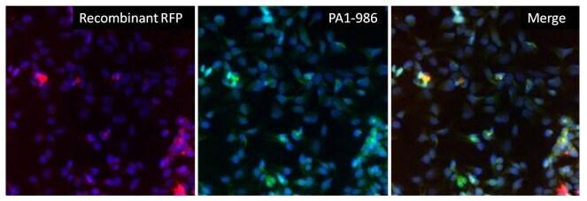 Anti-RFP Antibodies | Thermo Fisher Scientific - KR