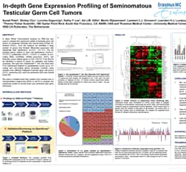 AACR14-07-gene-ex-profile-of-germ-cell-tumors