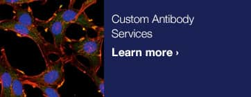 Custom Antibodies Services